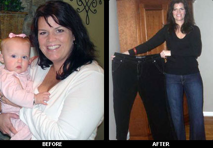 Medical weight loss dixie hwy