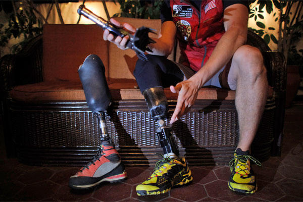 In this Thursday, April 16, 2015 photo, former U.S. Marine Charlie Linville holds his prosthesis during an interview with the Associated Press in Kathmandu, Nepal. (AP Photo/Niranjan Shrestha)